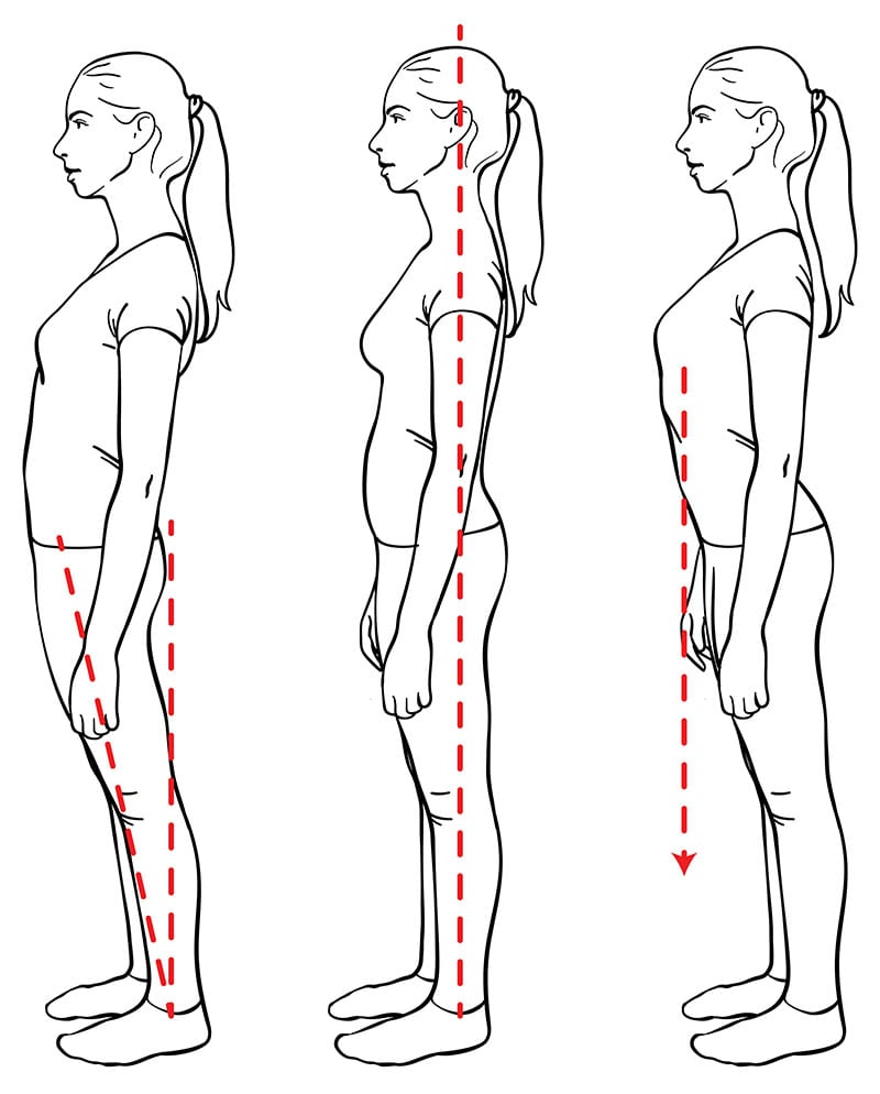 Figures showing different body alignment - sway back, optimal, rib thrust